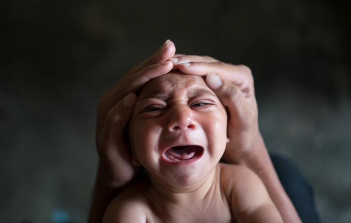 Microcefalia sordera deficiencia intelectual