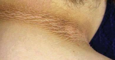 Síndrome de hiperqueratosis - hiperpigmentación