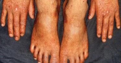 Síndrome de Rothmund-Thomson
