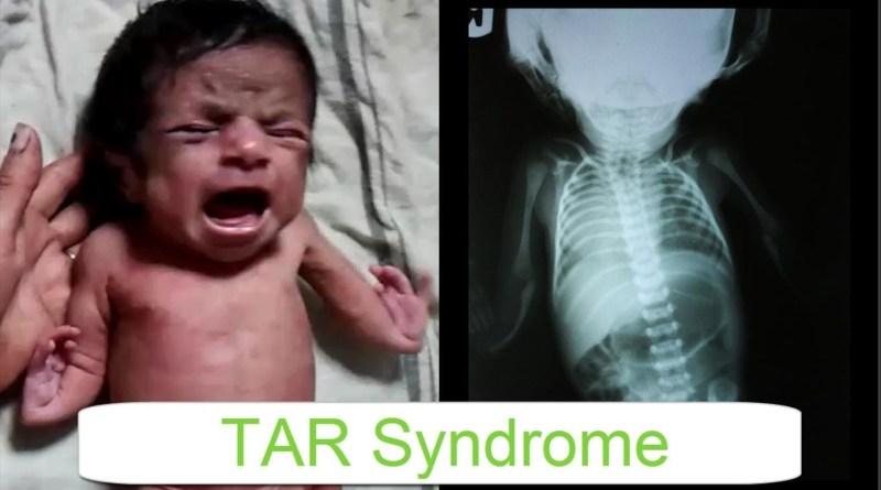 Síndrome TAR