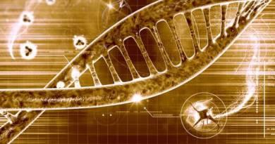 Sordera - diverticulosis en el intestino delgado - neuropatía