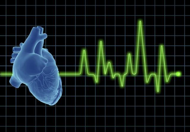 Taquicardia ventricular incesante infantil
