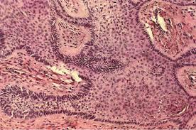 Tricofoliculoma