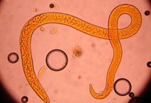 Triquinelosis