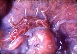 Angiostrongilosis