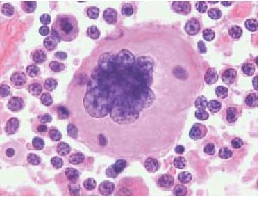 Linfoma anaplásico de células grandes ALK-negativo