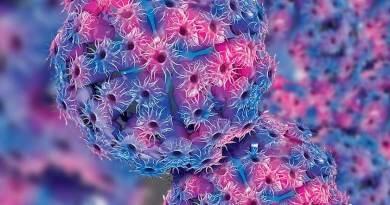 Síndrome de citomegalovirus fetal