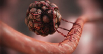 Hemangioendotelioma kaposiforme