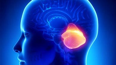 Hipomielinización con atrofia de los ganglios basales y del cerebelo