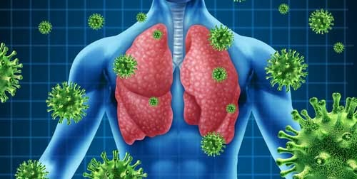 Infección respiratoria aguda por coronavirus