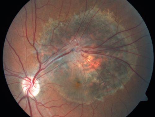Malformación capilar de la retina