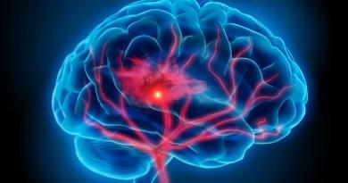 Malformación neurocutánea hereditaria