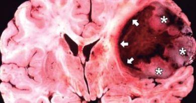 Oligoastrocitoma