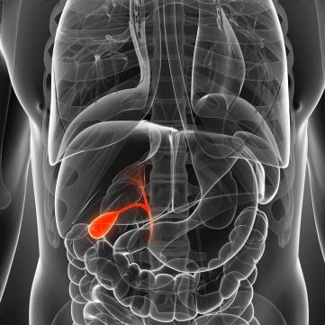 Carcinoma de vesícula y vías biliares extrahepáticas