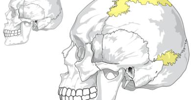 Displasia esquelética con huesos wormianos - fracturas múltiples - dentinogénesis imperfecta