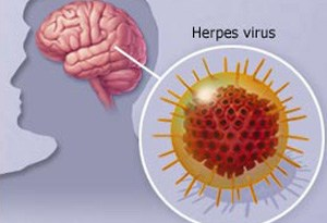 Encefalitis por herpes simple