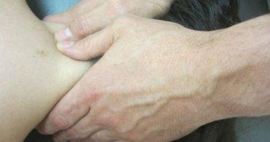 La fisioterapia manual en mujeres con síndrome del túnel carpiano podría prevenir la cirugía