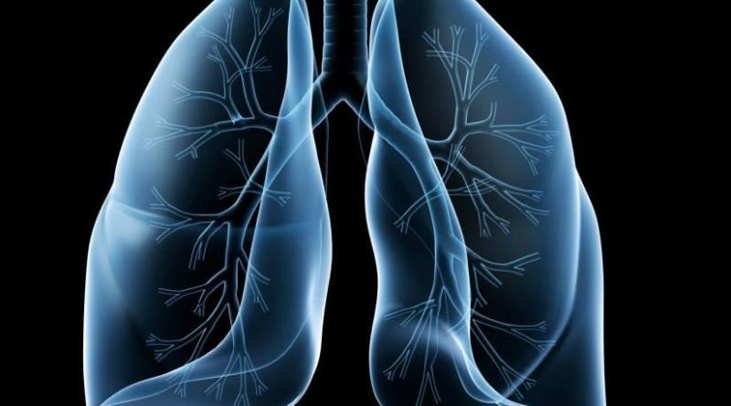 Síndrome nefrótico congénito - enfermedad pulmonar intersticial - síndrome de epidermólisis ampollosa