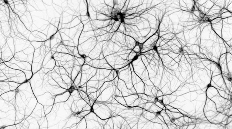 Trastorno neurometabólico por deficiencia de serina