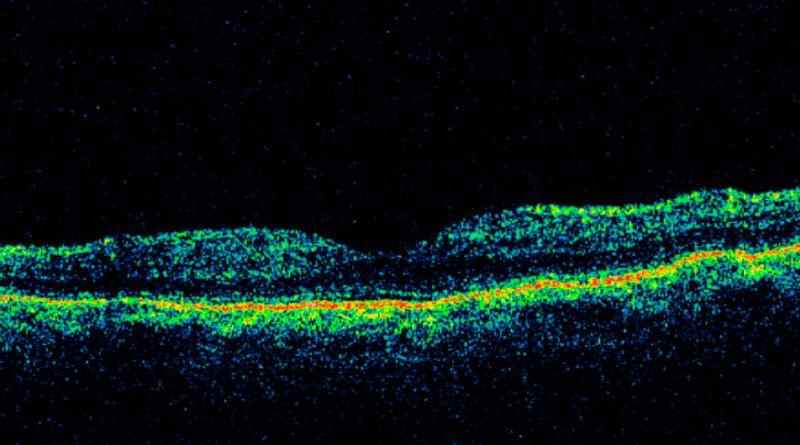 Atrofia coriorretiniana pigmentada paravenosa