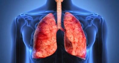 Enfermedad crónica por berilio
