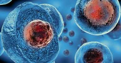 Los daños que causa la esclerosis múltiple (EM) en sus afectados, generalmente ocurren de manera progresiva y -en algunos casos- degenerativa, debido al ataque autoinmune a la mielina y los oligodendrocitos -células que forman la mielina-.