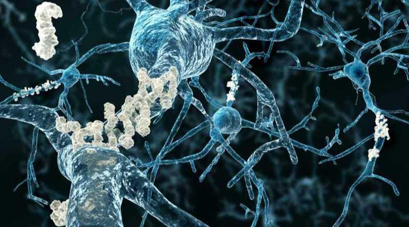 Nuevo tratamiento en los trabajos para la amiloidosis AL