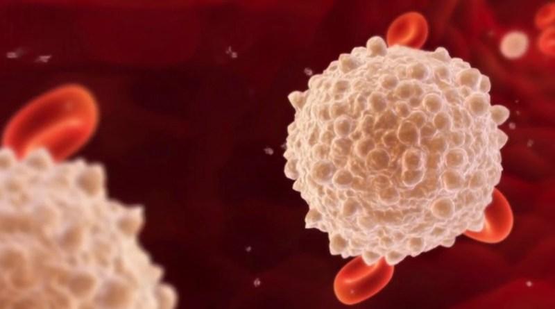 La combinación de pruebas mejora la tasa de diagnóstico de neutropenia