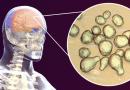 Nuevo tratamiento potencial para la criptococosis otorgada a una designación de fármaco huérfano