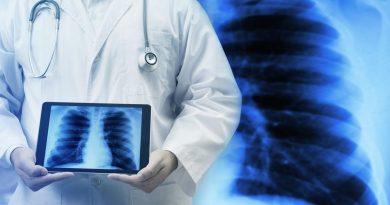 Según un informe, el combo vasodilatador puede tratar el síndrome de POEMS asociado a la PH