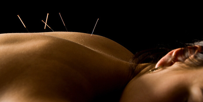 dry needling and acupuncture southport available at ferry rd physio