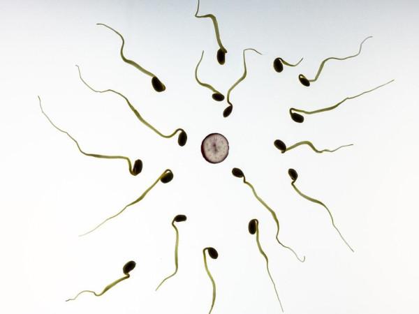 Cómo interpretar espermiograma