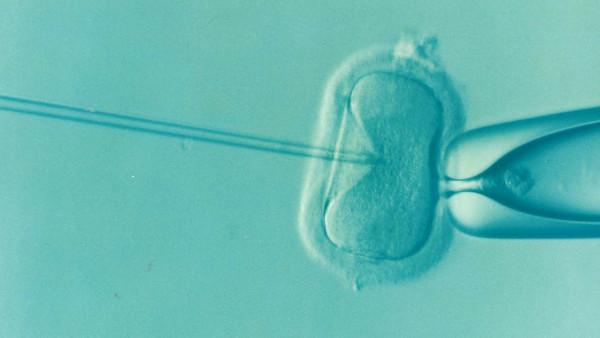 Tasas de éxito de Fecundación in vitro
