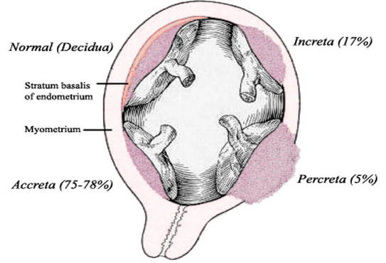 Placenta Acreta