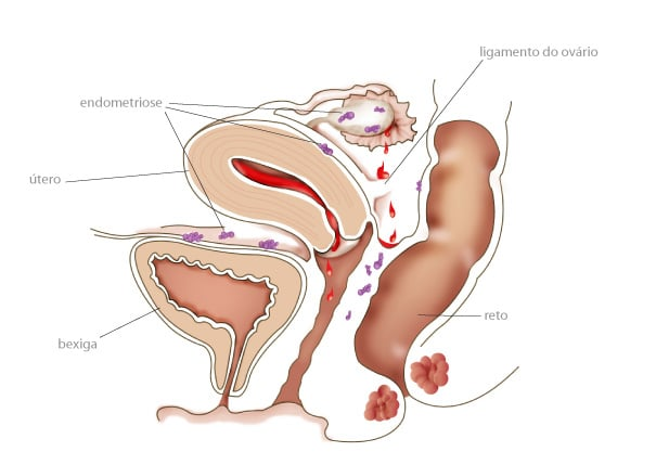 sitios-endometriose