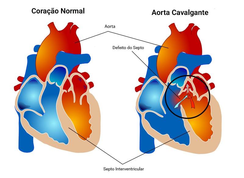 Cavalgamento de Aorta