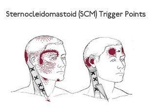 scm points de déclenchement dans le cou
