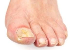 Read more about the article Μύκητες των νυχιών. Θεραπεία με φυσικές μεθόδους.