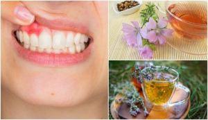 5 φυσικές σπιτικές θεραπείες για την ουλίτιδα