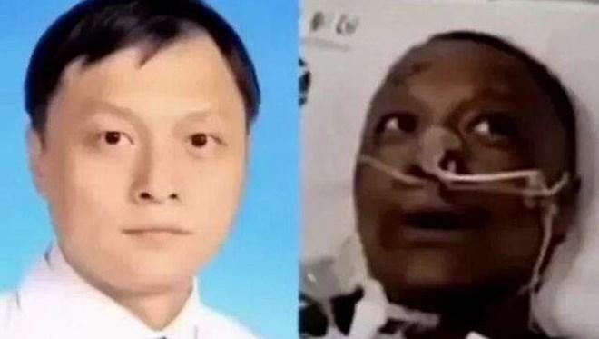 Ten rengi değişen Çinli doktor hayatını kaybetti