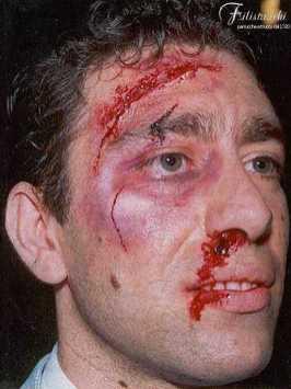 Immagine che rappresenta la simulazione di un trauma cranico con ferita alla tempia