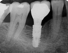 tof implant