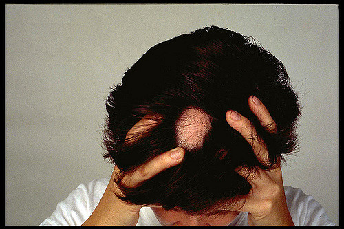 what to do for hair loss