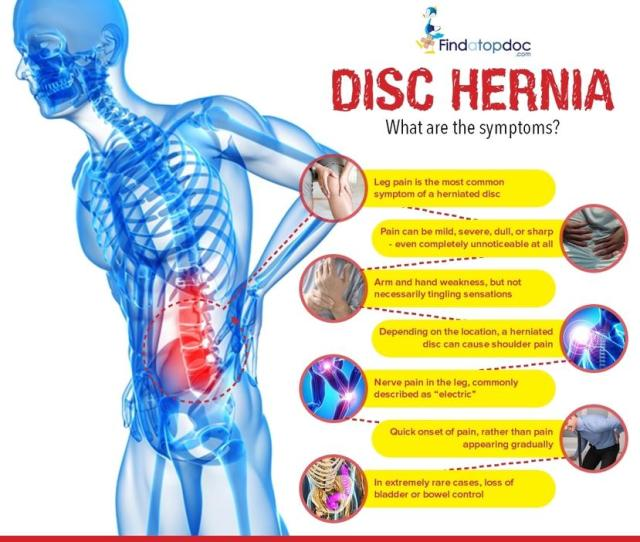 Herniated Disc Is Mostly Found In Your Lower Back Lumbar Spine And Cervical Spine