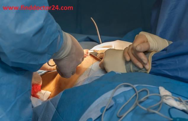 Breast Surgeon Doctor List