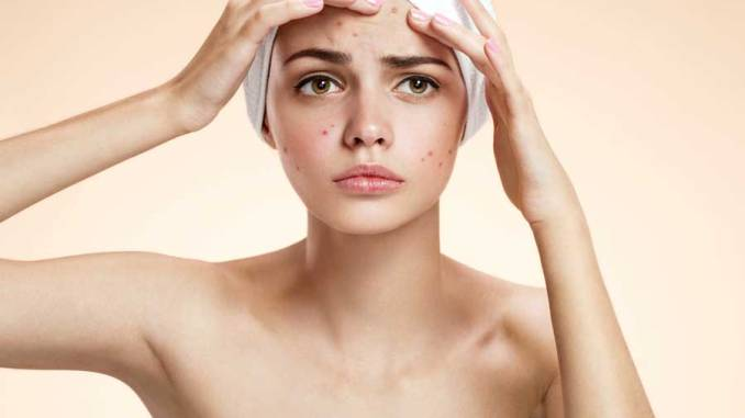 How to remove pimples scars