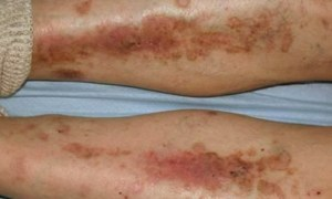 Diabetic Skin Complications