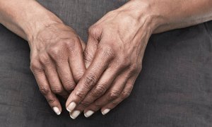 Alternative Treatments For Rheumatoid Arthritis