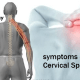 symptoms-of-cervical