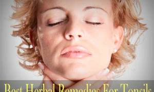 Best Herbal Remedies For Tonsils
